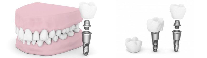 השתלת שיניים ביום אחד בשיטת אול און 4