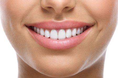 החלמה לאחר השתלת שיניים