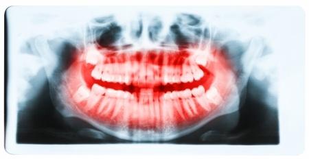 השתלות שיניים בהרדמה מלאה