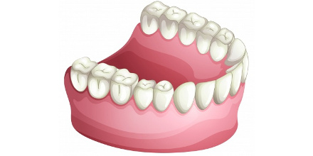 השתלות שיניים בלייזר