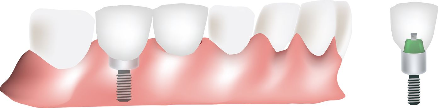 השתלות שיניים המלצות