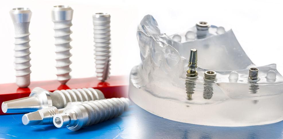 שתלים דנטליים לטיפול השתלת שיניים