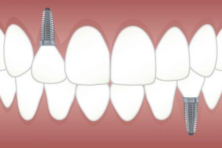teeth 3597679 1920