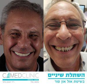 השתלת שיניים לפני ואחר